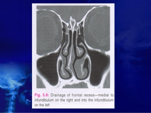 Radiology of nose and pns by drdhiru456 drdhiru456gmail fandeluxe Choice Image