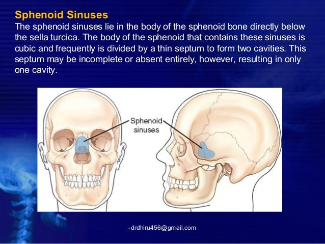 radiology of nose and pns (by drdhiru456), Human Body