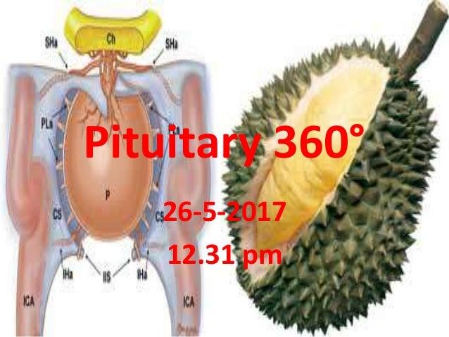 Pituitary 360° 26-5-2017 12.31 pm