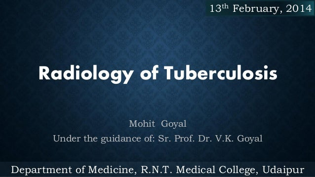 13th February, 2014  Radiology of Tuberculosis Mohit Goyal Under the guidance of: Sr. Prof. Dr. V.K. Goyal  Department of ...