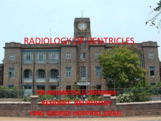 RADIOLOGY OF VENTRICLES DR ANJANEYULU SRIRAMA RESIDENT ,NEUROLOGY KING GEORGE HOSPITAL,VIZAG.