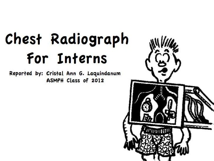 Chest Radiograph <br />For Interns <br />Reported by: Cristal Ann G. Laquindanum<br />     ASMPH Class of 2012<br />
