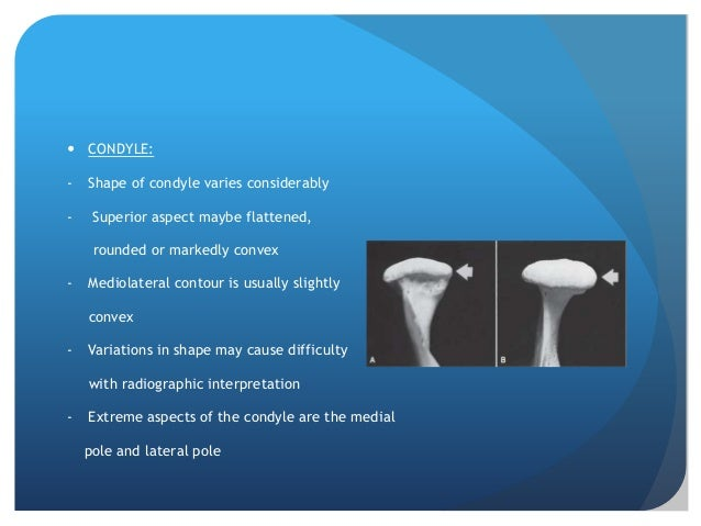  CONDYLE:-   Shape of condyle varies considerably-    Superior aspect maybe flattened,     rounded or markedly convex-   ...