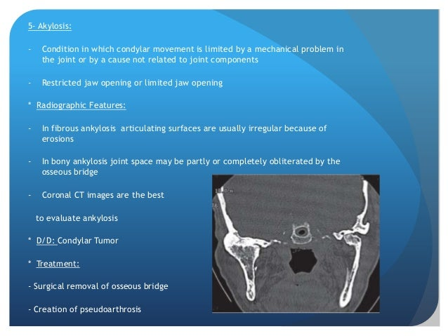 Tumors- Intrinsic or extrinsic- Intrinsic develop in condyle, temporal bone or coronoid  process- Extrinsic tumor may affe...