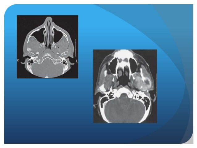 Radiographic imaging of TMJ