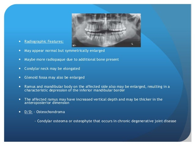    Radiographic Features:   May appear normal but symmetrically enlarged   Maybe more radiopaque due to additional bone...