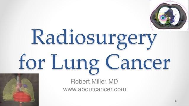 Radiosurgery for Lung Cancer Robert Miller MD www.aboutcancer.com