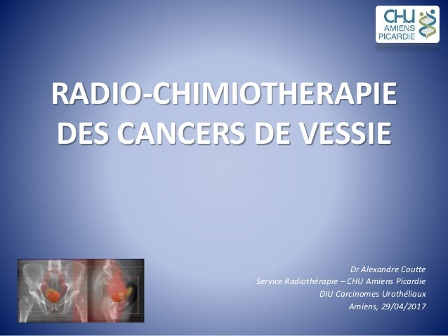 RADIORADIO--CHIMIOTHERAPIECHIMIOTHERAPIE DES CANCERS DE VESSIEDES CANCERS DE VESSIE Dr Alexandre Coutte Service Radiothéra...