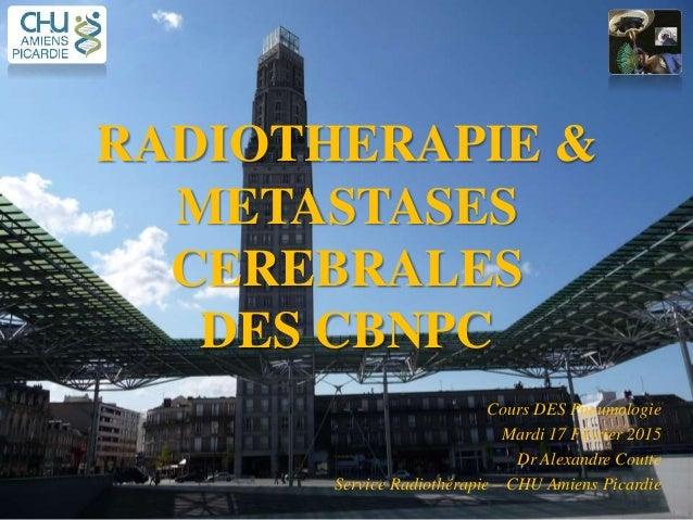 RADIOTHERAPIE & METASTASES CEREBRALES DES CBNPC Cours DES Pneumologie Mardi 17 Février 2015 Dr Alexandre Coutte Service Ra...