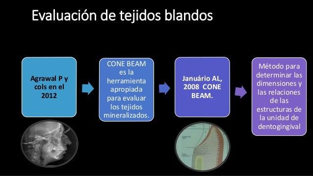 Tomografia Cone Beam En Periodoncia