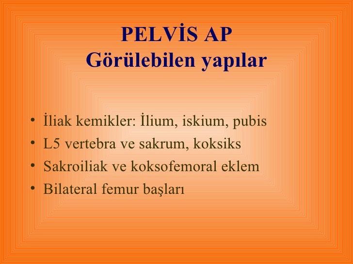 PELVİS AP Görülebilen yapılar <ul><li>İliak kemikler: İlium, iskium, pubis </li></ul><ul><li>L5 vertebra ve sakrum, koksik...