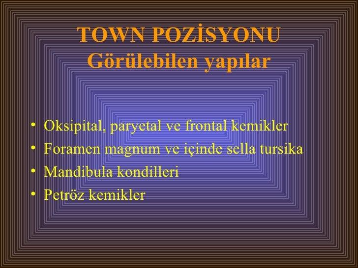 TOWN POZİSYONU Görülebilen yapılar <ul><li>Oksipital, paryetal ve frontal kemikler </li></ul><ul><li>Foramen magnum ve içi...