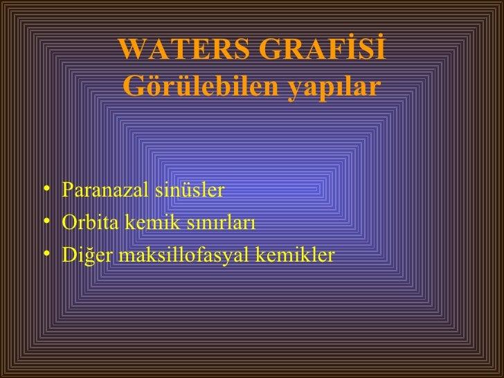 WATERS GRAFİSİ Görülebilen yapılar <ul><li>Paranazal sinüsler </li></ul><ul><li>Orbita kemik sınırları </li></ul><ul><li>D...