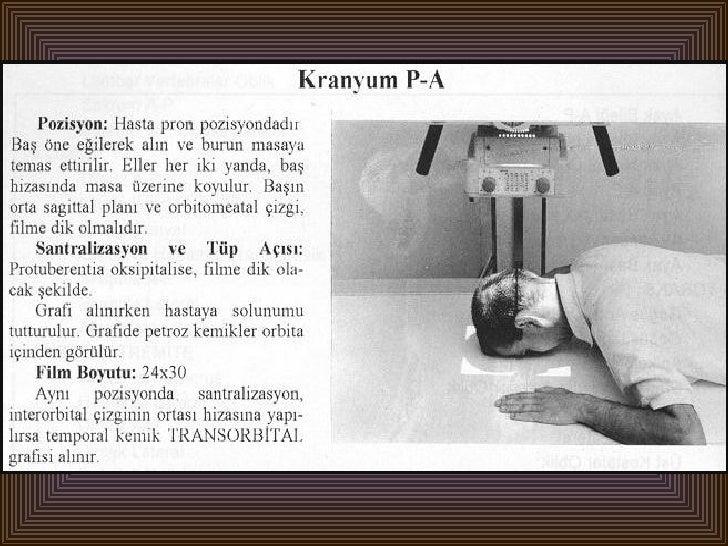 Radyolojik pozisyonlar baş,yüz-1 Slide 2
