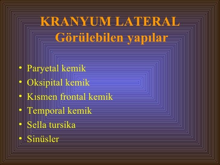 KRANYUM LATERAL  Görülebilen yapılar <ul><li>Paryetal kemik </li></ul><ul><li>Oksipital kemik </li></ul><ul><li>Kısmen fro...