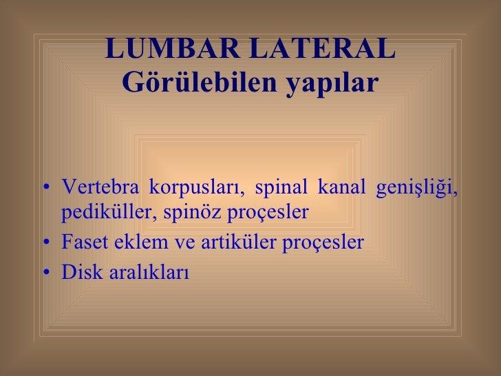 LUMBAR LATERAL Görülebilen yapılar <ul><li>Vertebra korpusları, spinal kanal genişliği, pediküller, spinöz proçesler </li>...