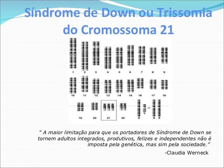 """Síndrome de Down ou Trissomia do Cromossoma 21 """"  A maior limitação para que os portadores de Síndrome de Down se tornem a..."""