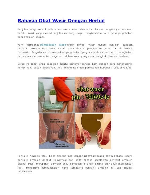 Rahasia Obat Wasir Dengan Herbal Benjolan yang muncul pada anus karena wasir disebabkan karena bengkaknya pembuluh darah ....