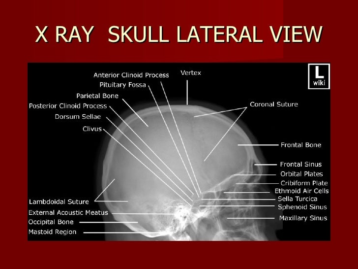 Lateral Skull X Ray Anatomy 3558413 Follow4morefo