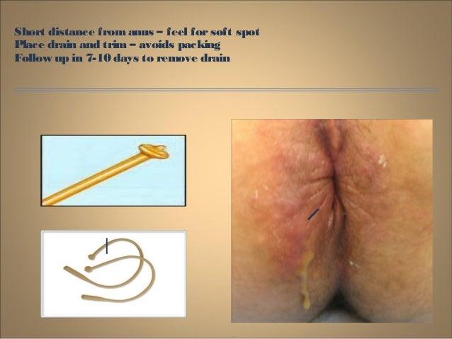Rakesh benign-anorectal-