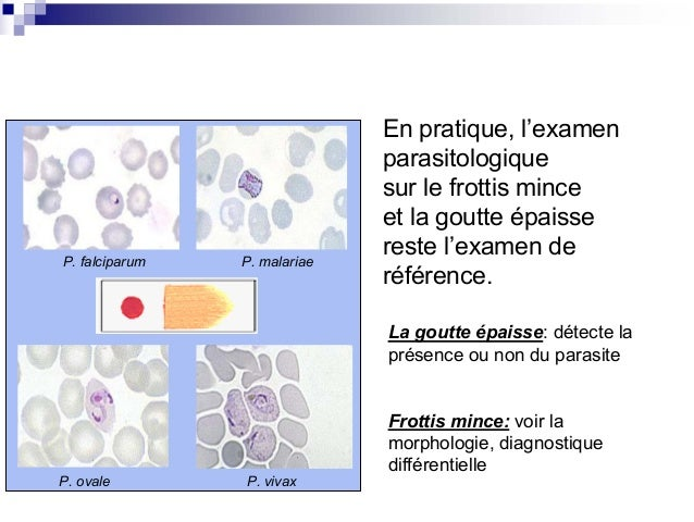 physiopathologie de la goutte pdf