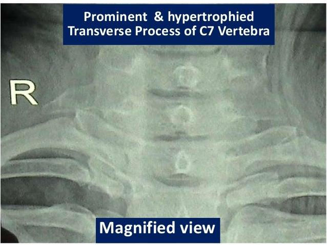 Ramu\'s sign, brachialgia, Adson\'s test, C7 transverse process, hypert…