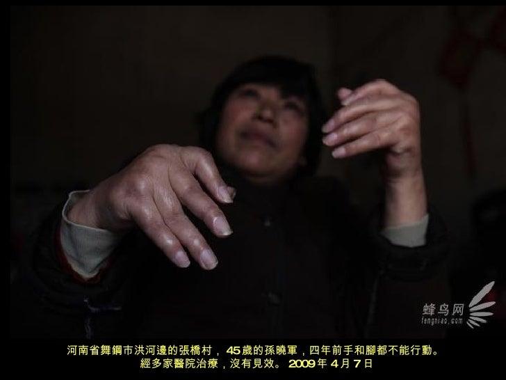 河南省舞鋼市洪河邊的張橋村, 45 歲的孫曉軍,四年前手和腳都不能行動。  經多家醫院治療,沒有見效。 2009 年 4 月 7 日