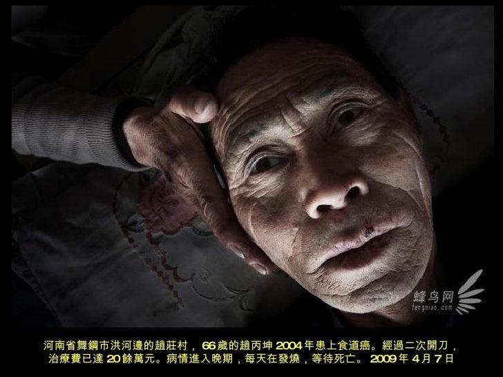 河南省舞鋼市洪河邊的趙莊村, 66 歲的趙丙坤 2004 年患上食道癌。經過二次開刀, 治療費已達 20 餘 萬元。病情進入晚期,每天在發燒,等待死亡。 2009 年 4 月 7 日