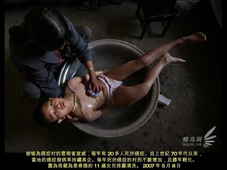 被喻為癌症村的雲南省宣威,每年有 20 多人死於癌症。自上世紀 70 年代以來, 當地的癌症發病率持續高企。每年死於癌症的村民不斷增加,且趨年輕化。 圖為母親為患骨癌的 11 歲女兒徐麗清洗。 2007 年 5 月 8 日