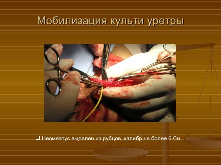 Как увеличить пенис без хирурга