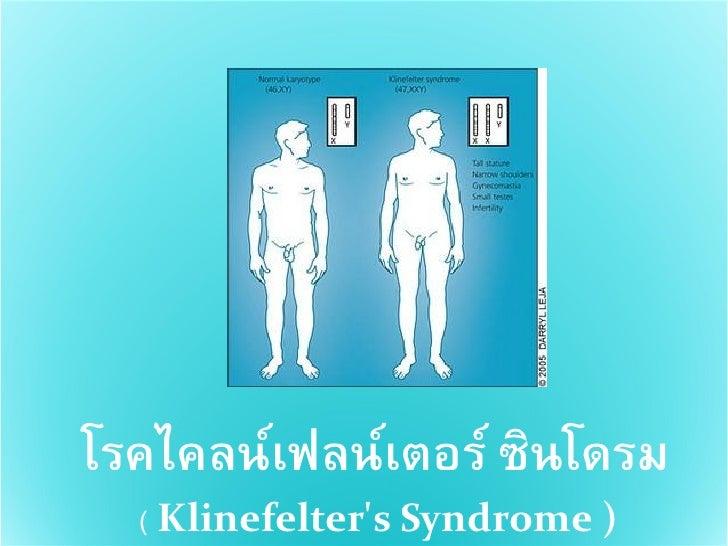 โรคไคลน์เฟลน์เตอร์ ซินโดรม   ( Klinefelter's Syndrome )
