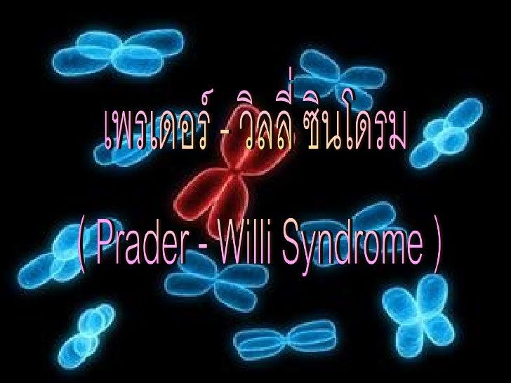 โรคทางพันธุกรรม ที่เกิดจากความผิดปกติของโครโมโซมคู่ที่ 15 ทาให้ ผู้ ป่ ว ยมี รู ป ร่ า งอ้ ว นมาก มื อ เท้ า เล็ ก กิ น จุ...
