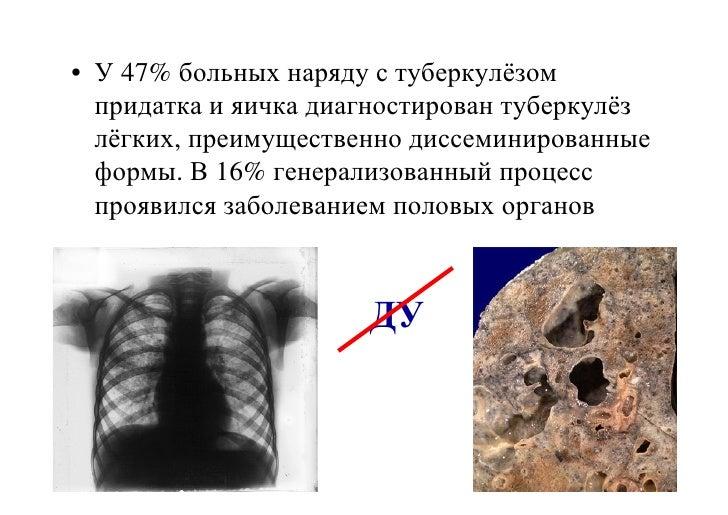 туберкулез придатка яичка