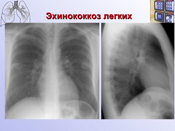 Дифференциальная диагностика округлых образований легких