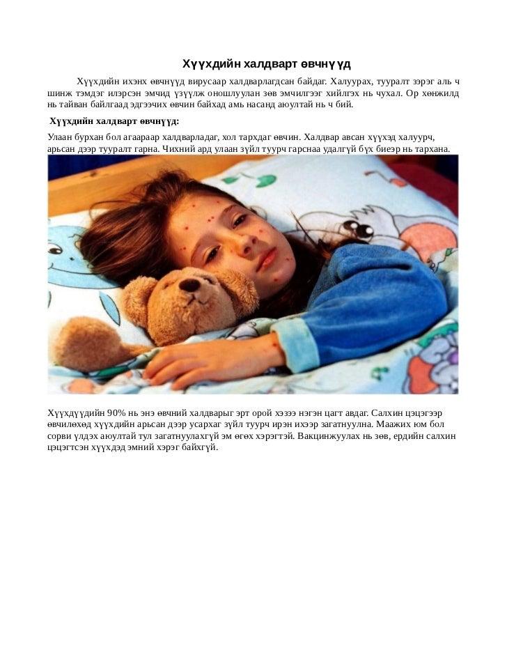 Хүүхдийн халдварт өвчнүүд       Хүүхдийн ихэнх өвчнүүд вирусаар халдварлагдсан байдаг. Халуурах, тууралт зэрэг аль чшинж т...