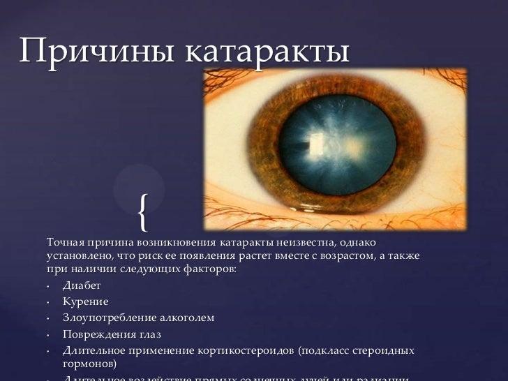 Путеводитель по катаракте