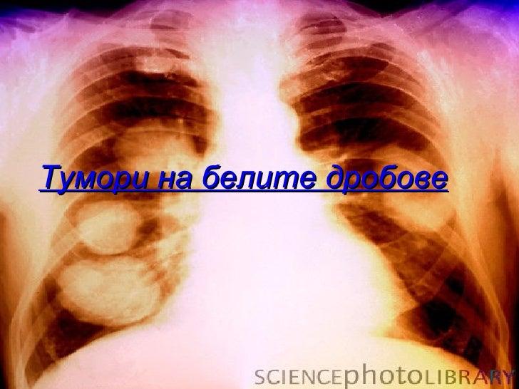 Тумори на белите дробове