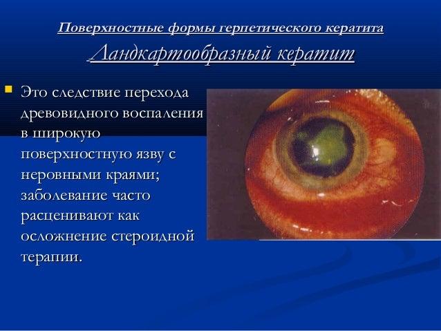 заболевания роговицы (сюзи)