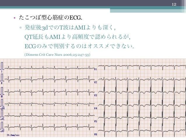12• たこつぼ型心筋症のECG. ▫ 発症後3dでのT波はAMIよりも深く,  QT延長もAMIより高頻度で認められるが,  ECGのみで判別するのはオススメできない.  (Dimens Crit Care Nurs 2006;25:247-...