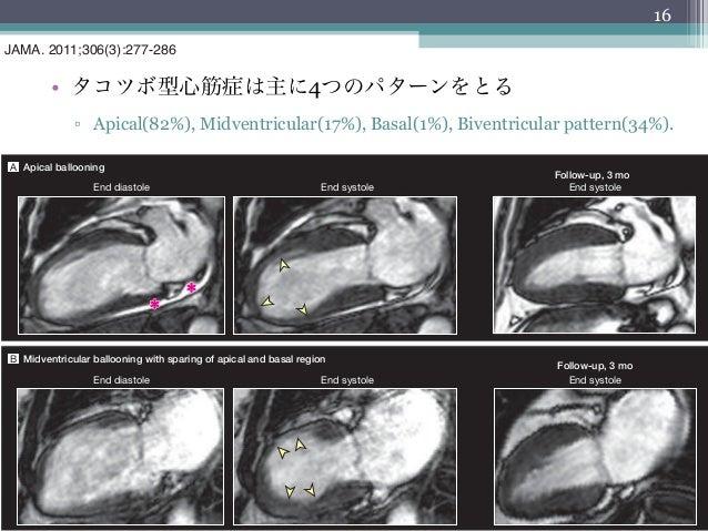 16JAMA. 2011;306(3):277-286         • タコツボ型心筋症は主に4つのパターンをとるCLINICAL CHARACTERISTICS OF STRESS CARDIOMYOPATHY              ...
