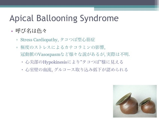 Apical Ballooning Syndrome• 呼び名は色々 ▫ Stress Cardiopathy, タコつぼ型心筋症 ▫ 極度のストレスによるカテコラミンの影響,  冠動脈のVasospasmなど様々な説があるが, 実際は不明. ...