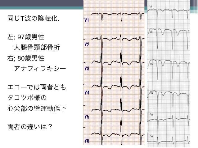 7同じT波の陰転化.左; 97歳男性大   骨頸部骨折右; 80歳男性アナフィラキシーエコーでは両者ともタコツボ様の心尖部の壁運動低下両者の違いは?