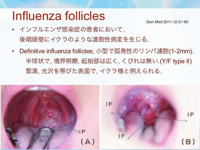 Influenza follicles                                       Gen Med 2011;12:51-60     • インフルエンザ感染症の患者において,         後咽頭壁にイクラの...