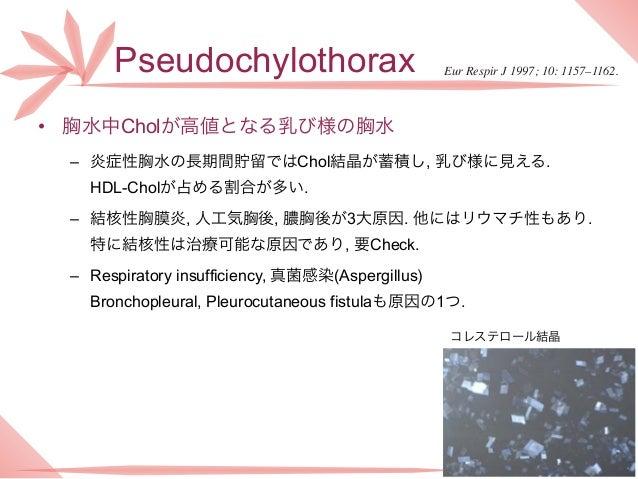 Pseudochylothorax                           Eur Respir J 1997; 10: 1157–1162.• 胸水中Cholが高値となる乳び様の胸水 – 炎症性胸水の長期間貯留ではChol結晶が蓄...