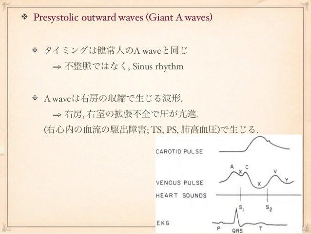 Presystolic outward waves (Giant A waves)  タイミングは健常人のA waveと同じ  ⇒ 不整脈ではなく, Sinus rhythm  A waveは右房の収縮で生じる波形.  ⇒ 右房, 右室の...