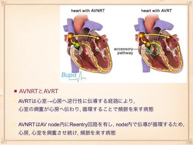 • 同一患者における,    AVNRT, AVRT時の右房圧の変化     • A; 患者XのAVNRT        B; 患者XのAVRT        C; 患者YのAVNRT        D; 患者YのAVRT • AVNRT, A...