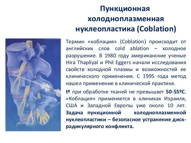 Пункционная      холодноплазменная   нуклеопластика (Coblation)Термин «коблация» (Coblation) происходит отанглийских слов ...