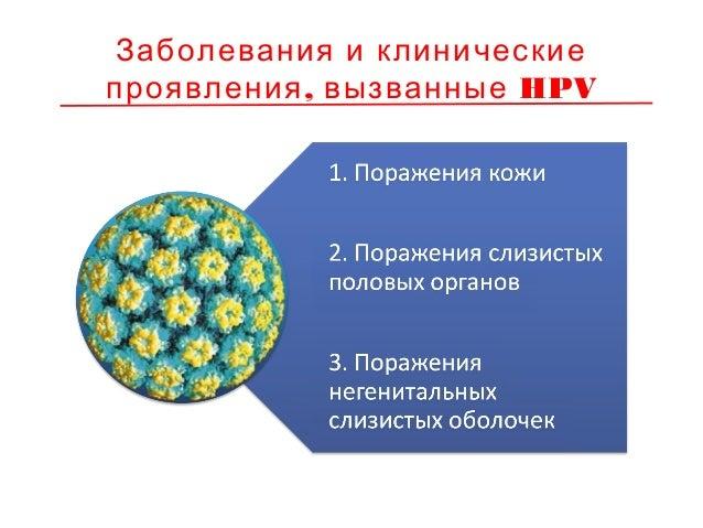Причинные типы HPV при поражениях слизистых половых органов