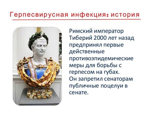 :Герпесвирусная инфекция история Римский император Тиберий 2000 лет назад предпринял первые действенные противоэпидемическ...