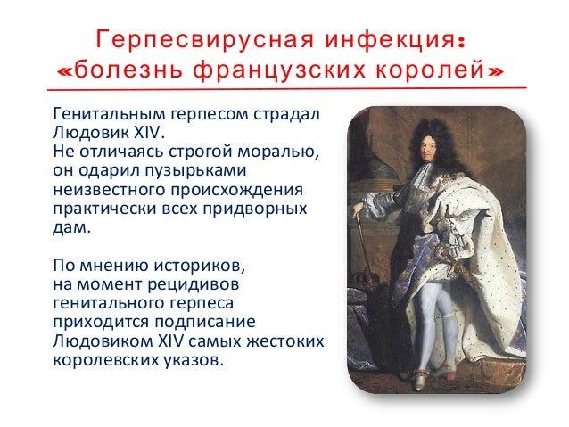:Герпесвирусная инфекция « »болезнь французских королей В 1736 году описание генитального герпеса дал лейб-медик короля Лю...